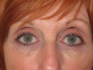 foto Do This to Disguise Dark Circles