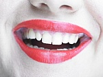 what to ask about tooth whitening image