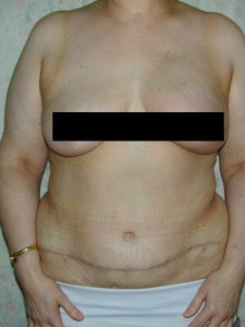 Breast cancer Primary reconstruction case with abdomen 2 censored - After