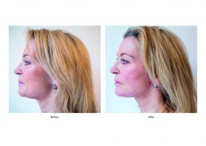 Gillian-Taylforth-pre-and-imediately-post-Silhouette-Soft-treatment-1024x723