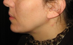 one stitch facelift