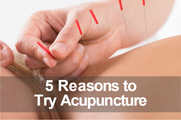 reasons to try acupuncture image