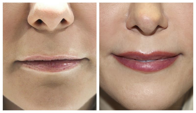 younger looking lips image