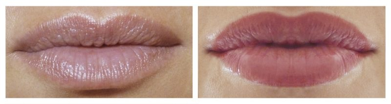 younger lips treatment image