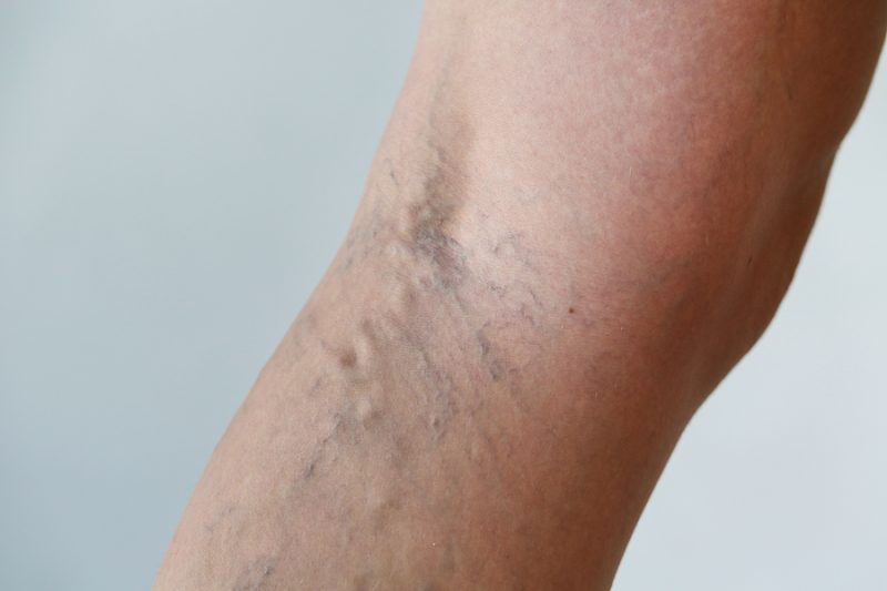 natural treatment for varicose veins image