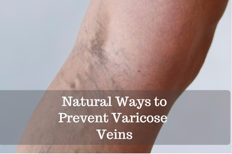 Natural Ways To Prevent Varicose Veins