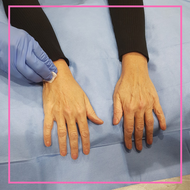 filler treatment for younger looking hands image