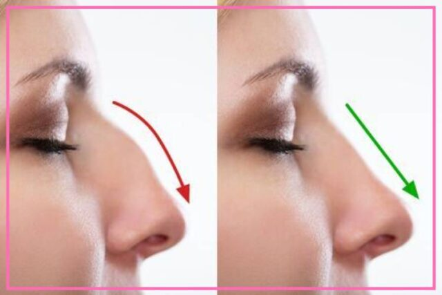 3 things to know before having rhinoplasty image